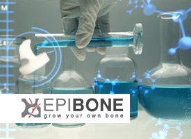 Epibone Patients will Lab Grow their own bones from stem cells in bioreactor